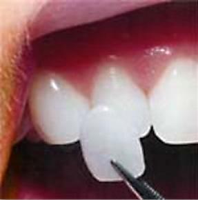 A porcelain veneer being placed on teeth
