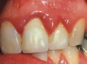Thickened gums as a result of poorly made dental crowns