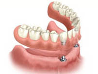 Implant overdenture illustration of ball-shaped snap fixture