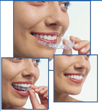 Photo of Invisalign patient