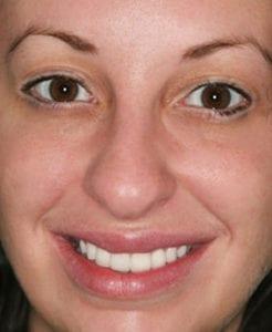 Photo of Lauren after smile makeover