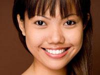 sample photo of a woman with Porcelain dental veneers