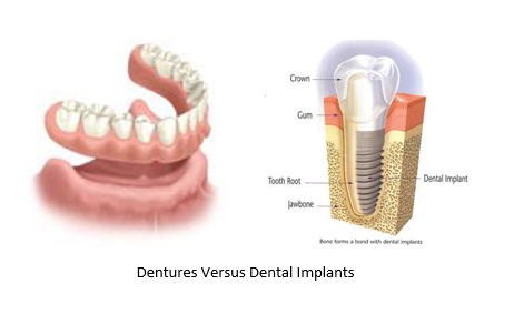 L: dentures R: dental implant