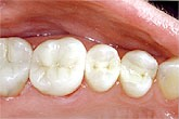 sample of composite fillings used at the buffalo dentist office