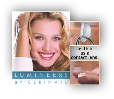 Lumineers advertisement with a woman smileing, and two images of the veneers