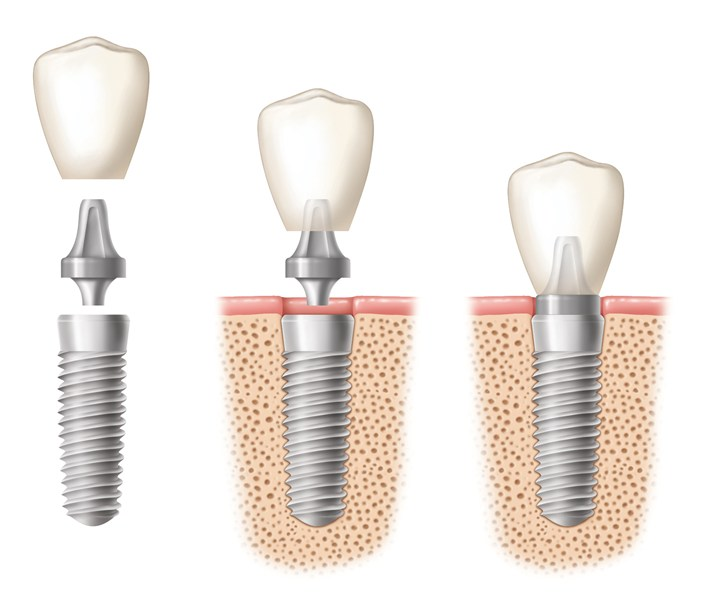 Image of a dental implant being placed in three stages