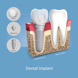 Image of dental implant beside a natural tooth