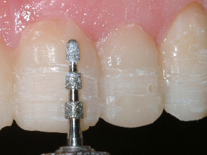Teeth being prepared for porcelain veneers