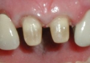 teeth prepped for porcelain crowns