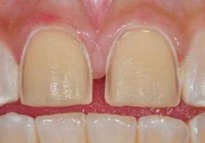 teeth prepped for porcelain veneers